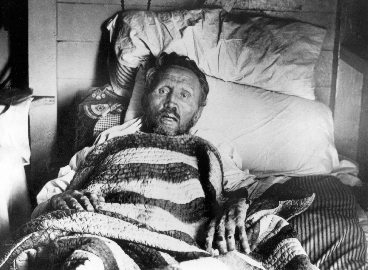 Father Damien on his deathbed-1200