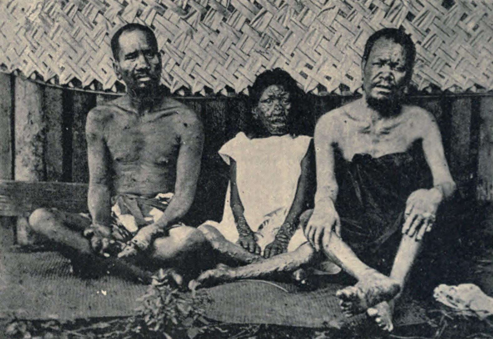 Leprosy Victims in Tahiti by Edward Reeves in 1896-2